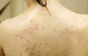 Swimmer's Itch spots often look like red small dots that spread on the areas that was touched by the lake water. submitted photo